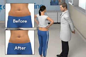 Marietta GA Non-Surgical Fat Reduction
