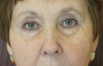 female patient after upper blepharoplasty