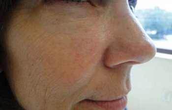 female patient after right cheek Mohs surgery