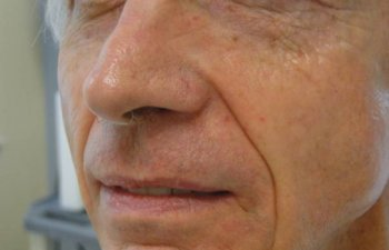 patient after upper lip Mohs surgery