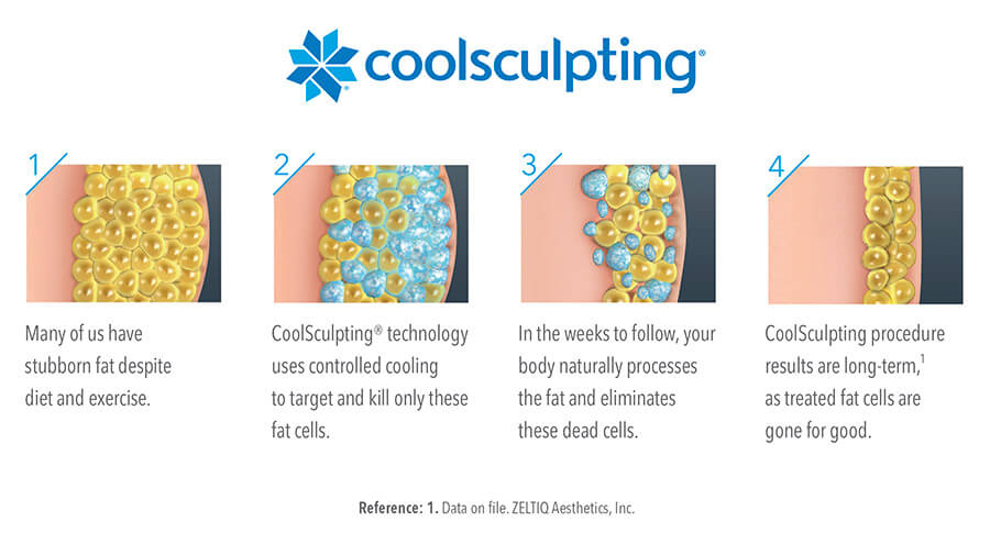 4 photos showing how CoolSculpting works