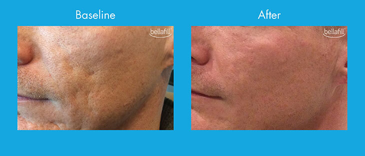 Patient before and after acne scar treatment