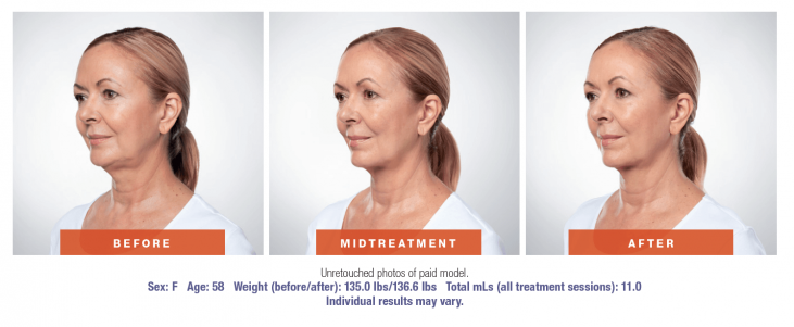 3 photos showing female patient before and after Kybella treatment