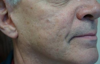 middle-aged male patient with acne scarring after Bellafill treatment
