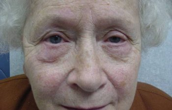 female patient after blepharoplasty
