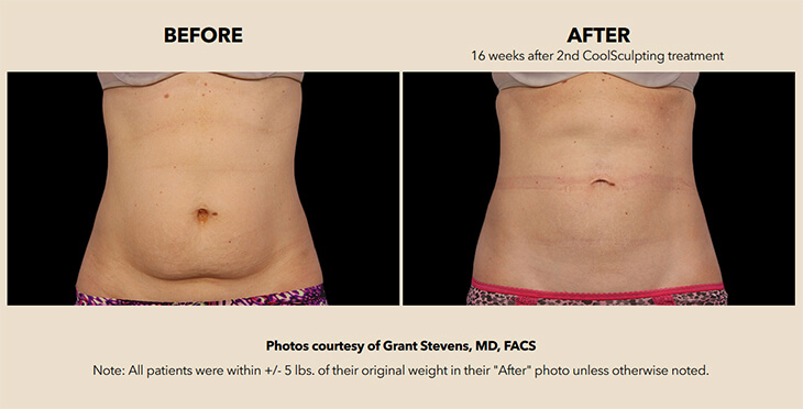Patient's abdomen before and after treatment with the help of CoolSculpting