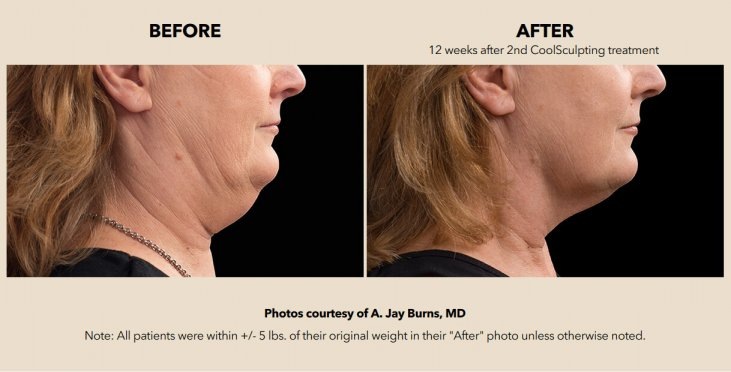 Patient before and after chin treatment with the help of CoolSculpting
