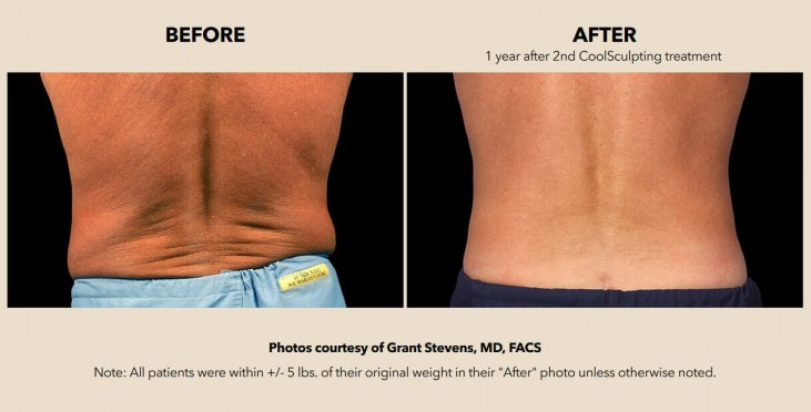 Patient's back before and after treatment with the help of CoolSculpting
