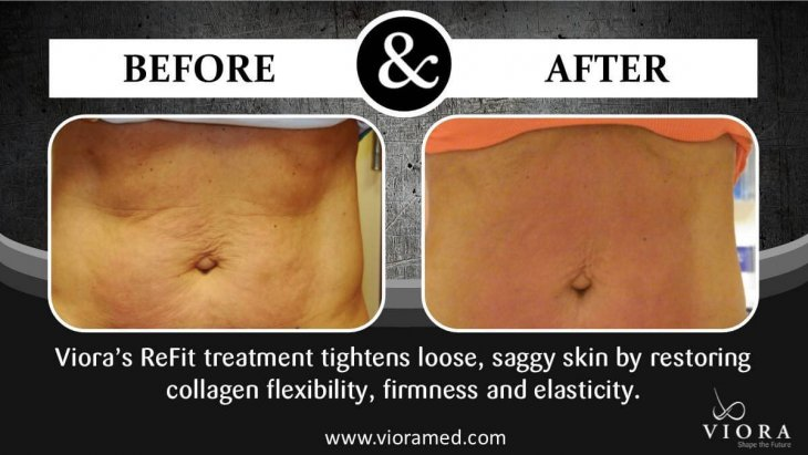 Photo of the female patient's abdomen before and after the Viora treatment