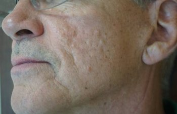 middle-aged male patient with acne scarring before Bellafill treatment