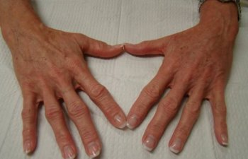 hands after Radiesse treatment