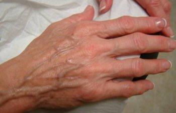 hands before Radiesse treatment