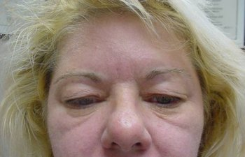 female patient before blepharoplasty