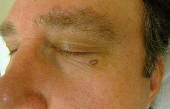 Mohs - Left Lower Eyelid