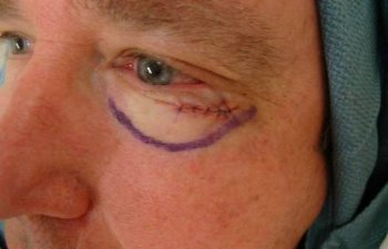 male patient after left lower eyelid Mohs surgery