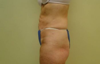 female patient after tumescent liposuction