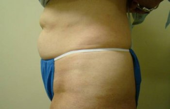 female patient before tumescent liposuction