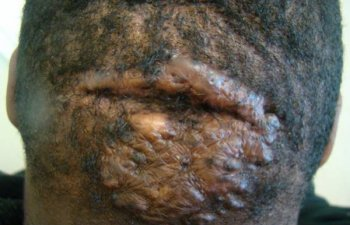 patient before head keloid treatment