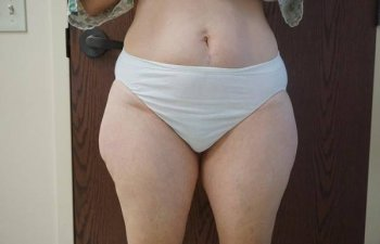 female outer thighs before liposuction