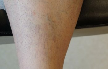 righ shin before sclerotherapy