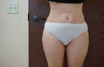 female patient before outer thighs liposuction