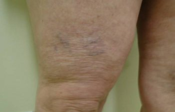 Before Vein Treatment