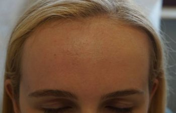 patient suffering from acne after Laser Genesis treatment