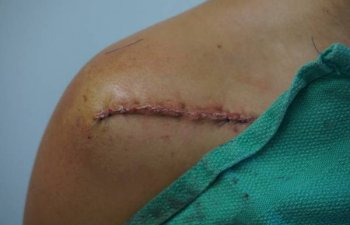 patient after surgical tattoo removal