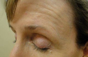 female patient after left brow Mohs surgery