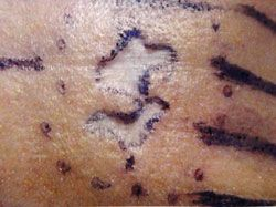patient before scar removal