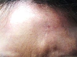 patient after scar removal
