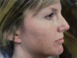 patient before chemical peel