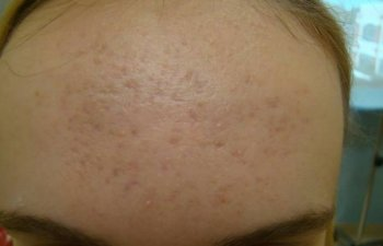 patient suffering from acne before Laser Genesis treatment