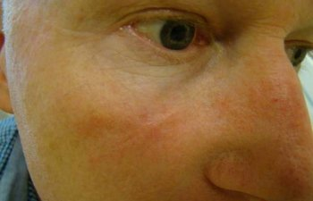 patient after right cheek Mohs surgery