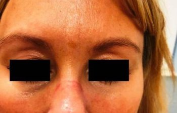 female patient before Restylane treatment for frown lines