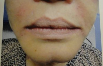 female patient before Juvederm treatment for nasolabial folds