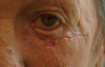male patient after Mohs left lower eyelid surgery