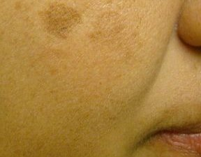 female patient before mole removal