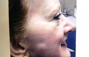 female patient after chemical peel treatment