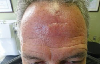 male patient after forehead Mohs surgery