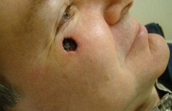 Mohs-Right Lower Eyelid