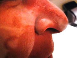 patient after nasal bridge Mohs surgery