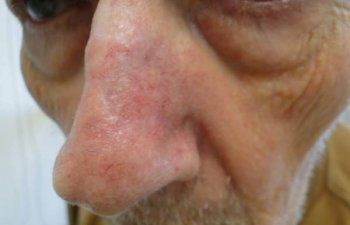 male patient after nose Mohs surgery