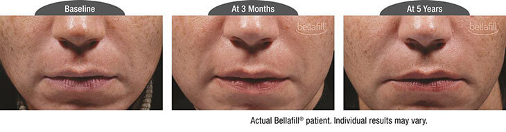 Three photos - Bellafill patient - baseline, at 3 months and at 5 years. Individual results may vary