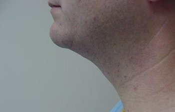male patient after neck liposuction