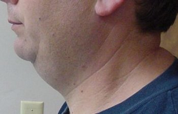 male patient before neck liposuction