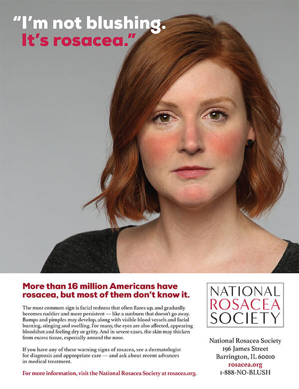 Advertising banner - More than 16 million Americans have rosacea, but most of them don't know it.