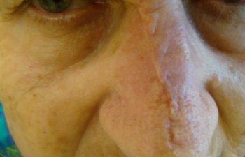 patient after nose Mohs surgery