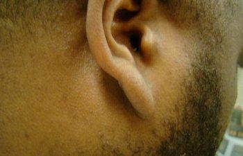 male patient after ear keloid treatment
