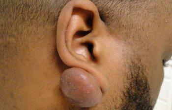 male patient before ear keloid treatment